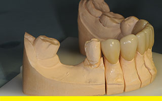 Space before starting 3 unit zirconia bridge