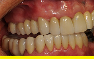 Final Bridge & Crowns in Prettau Zirconia
