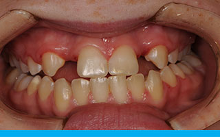 Gum surgery was required to achieve a long term aesthetic result