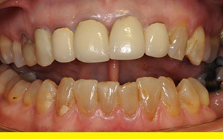 Lower front teeth badly discoloured and uneven