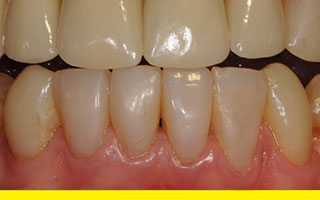Composite resin overlays and crowns on upper front teeth