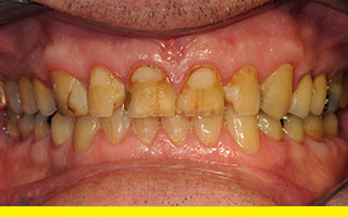 75 year old with cracks with stains, damaged and worn front teeth