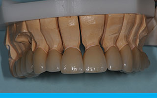 Custom colour layering of porcelain within Prettau Zirconia crowns
