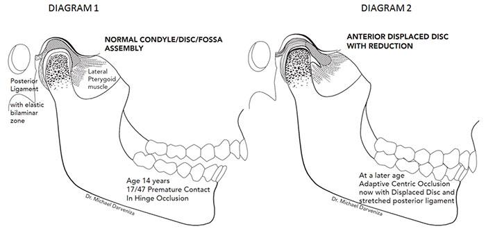 occlusal splint therapy