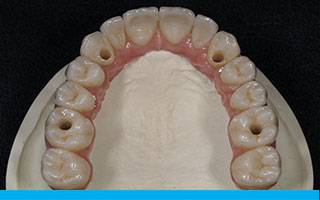 implant-dentures-a1a