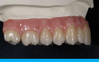 implant-dentures-a1b
