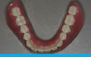 implant-dentures-a3a