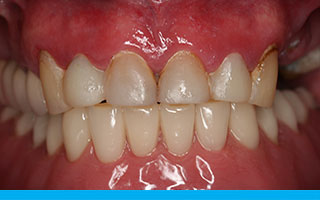 implant-dentures-a4a