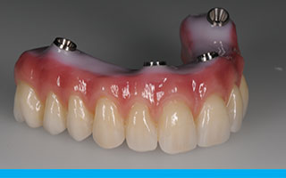 All-on-4 screw retained zirconia prosthesis