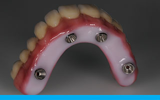 Highly glazed hygienic surface of zirconia