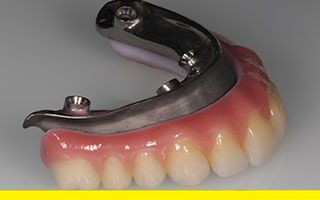 Implant denture prior to HotBonding