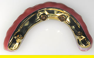 All-on-4 Prettau Zirconia implant denture titanium base