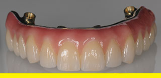 All-on-4 Prettau Zirconia implant denture