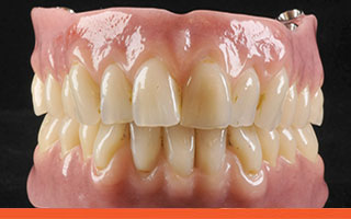 Acrylic resin implant dentures