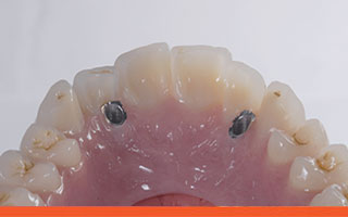 Upper implant denture to create a fixed prosthesis