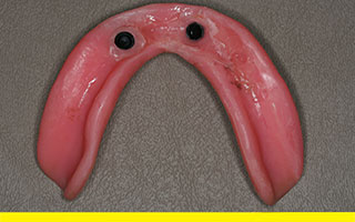 The denture shows black o-rings and replaced when worn out