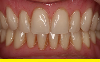 Resin implant dentures