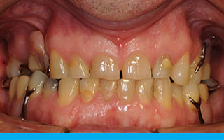 Missing back teeth with removable partial denture