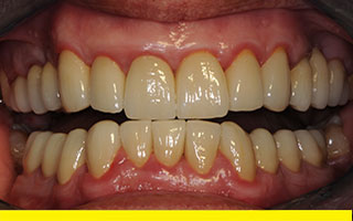 Finished crowns following full mouth occlusal reconstruction