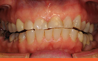 Short worn damaged angled teeth
