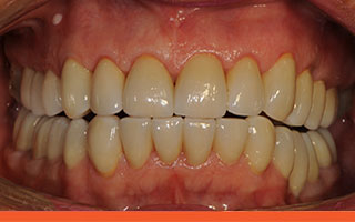 Finished 'straight' crowns following full mouth occlusal reconstruction