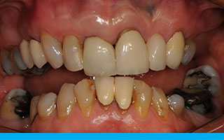 Heavily treated teeth with uneven bite and missing teeth