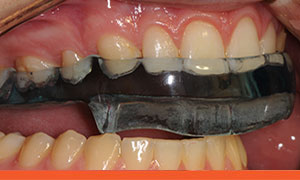 Fully Protective Occlusal Splint in protective right jaw movement