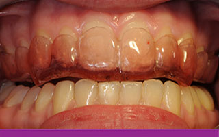 Thin strong splint to prevent tooth movement