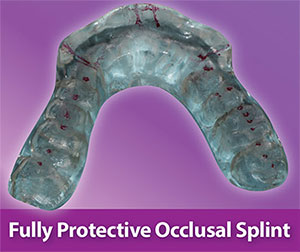 Fully protected occlusal splint