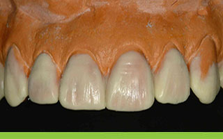 Plaster models to verify tooth shape and size