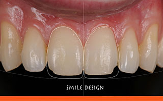 Premium Veneers For Teeth Zirconia Feldspathic Porcelain