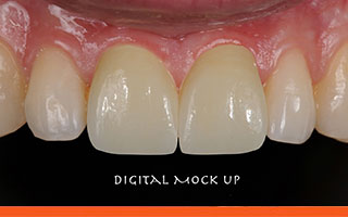 Laboratory digital tooth designing for veneers