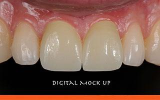 Laboratory digital tooth designing for veneers