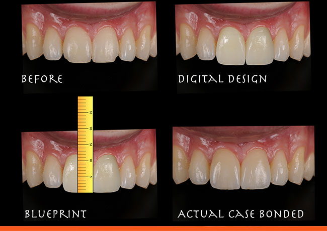Digital laboratory design and completed porcelain veneers