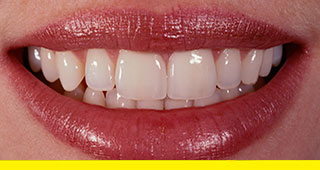Completed porcelain veneers