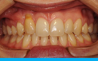 Discoloured and cracked right canine tooth in the wrong position