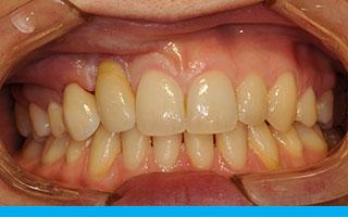 Prettau Zirconia and Porcelain Veneer on premolar tooth and crown on canine