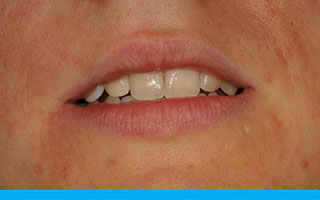 Natural lip line with symmetrical biting edges of the incisors and canines