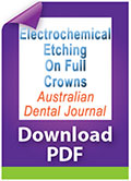Download PDF Electrochemical etching on full crowns