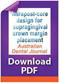Download PDF Intrapost-core design for  supragingival crown margin placement