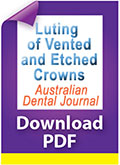 Download PDF luting of vented and etched crowns
