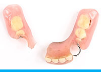 Broken Temporary Denture