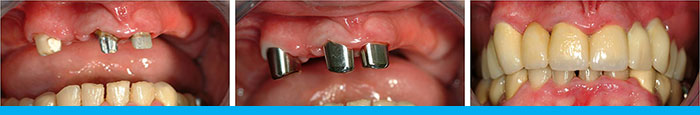 Telescopic Dentures - Before During After