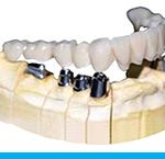 Telescopic Denture